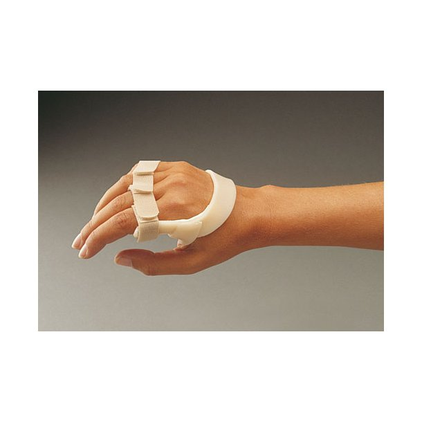 Ulnar drift splint right 3,2 non perf