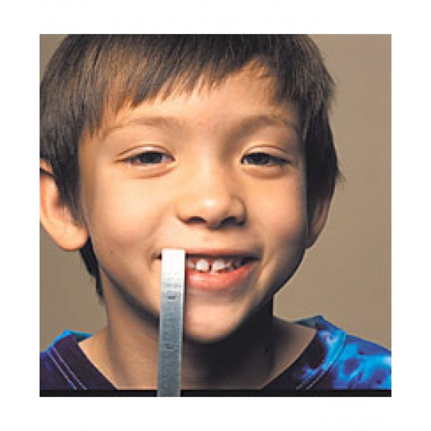 Dental lineal